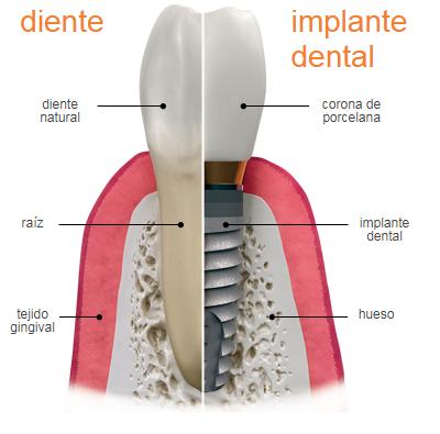 Implantes dentales Kixxdental - Jespicar