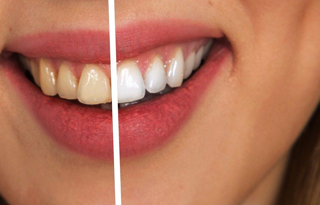 Perfeccionamiento Dental Kixxdental - Blanqueamiento