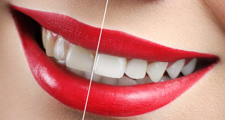 Blanqueamiento Dental Kixxdental - Jespicar