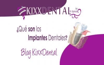 implantes dentales blog kixxdental